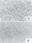 Aflatoxin Antibody (MA1-16885)