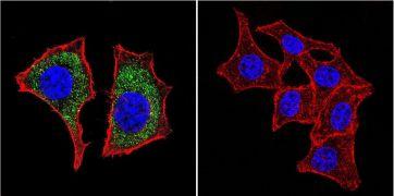 beta Catenin Antibody (MA1-2001)