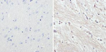 NEFH Antibody (MA1-2012)