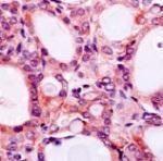 SLC5A5 Antibody (MA1-21239)