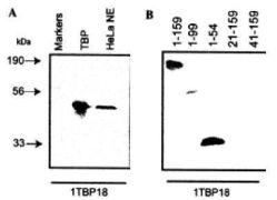 TBP Antibody (MA1-21516)