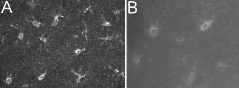 S100 Antibody (MA1-22734)