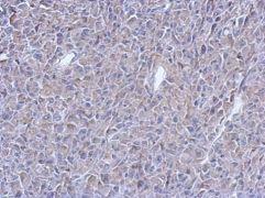 ATM Antibody (MA1-23154)