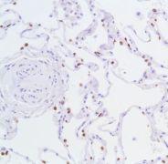 Nkx2.1 Antibody (MA1-25821)