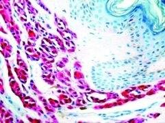 S100 Antibody (MA1-26621)