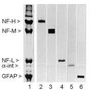 NEFM Antibody (MA1-33723)