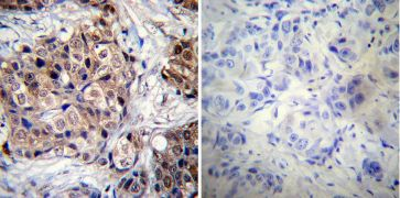 Phospho-Progesterone Receptor (Ser190) Antibody (MA1-413)