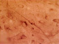 HAP1 Antibody (MA1-46412)