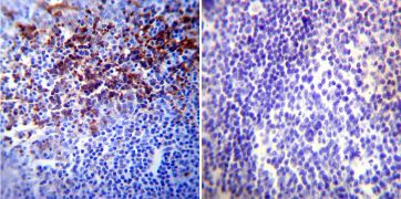 HIF1A Antibody (MA1-516)
