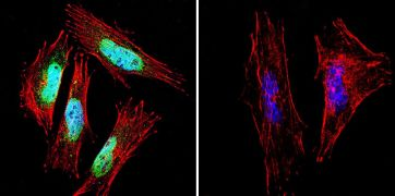 PSEN1 Antibody (MA1-752)