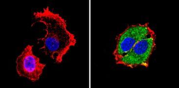 RARA Antibody (MA1-810A)
