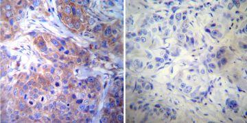 gamma Tubulin Antibody (MA1-850)