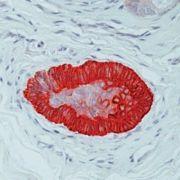 Cytokeratin 15 Antibody (MA1-90926)