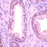 Streptococcus agalactiae Antibody (MA1-91193)