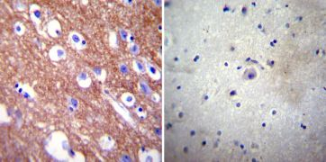 PMCA4 ATPase Antibody (MA1-914)