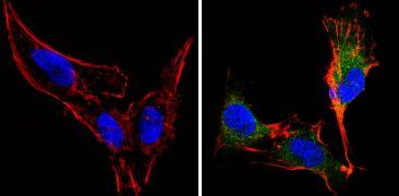 Recoverin Antibody (MA1-932)