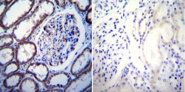 Calcium Sensing Receptor Antibody (MA1-934)