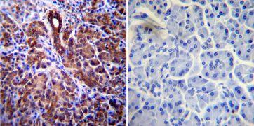 CFTR Antibody (MA1-935)