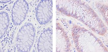 SOD1 Antibody (MA1-105)