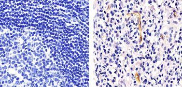 VCAM-1 Antibody (MA1-12637)