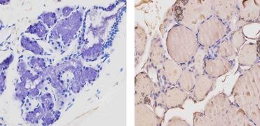 THRA/THRB Antibody (MA1-215)