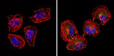 CD18 Antibody (MA1810)