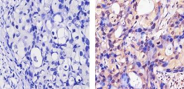 ErbB4 Antibody (MA1-861)