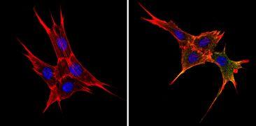 BAP31 Antibody (MA3-002)