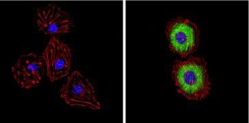 Endothelin 1 Antibody (MA3-005)