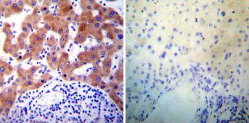 PDI Antibody (MA3-018)