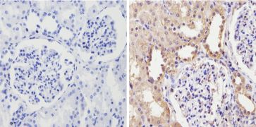 CYP3A7 Antibody (MA3-034)