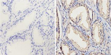 Cytochrome P450 1A1 + 1A2 Antibody (MA3-036)