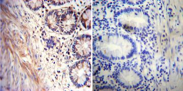 Acetylcholinesterase Antibody (MA3-042)