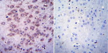 CHRNA1 Antibody (MA3-043)