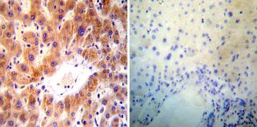 ARF1/ARF3/ARF5/ARF6 Antibody (MA3-060)