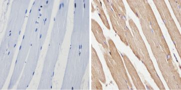 Spectrin beta-1 Antibody (MA3-062)