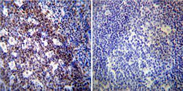 NONO Antibody (MA3-2024)