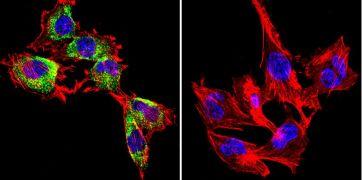 Caveolin 1 Antibody (MA3-600)