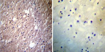 HCN3 Antibody (MA3-902)
