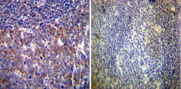 HCN4 Antibody (MA3-903)