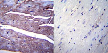 SERCA1 ATPase Antibody (MA3-911)