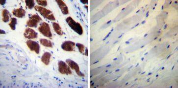 Calsequestrin Antibody (MA3-913)