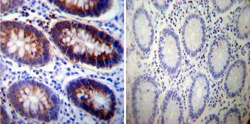 ATP1A3 Antibody (MA3-915)