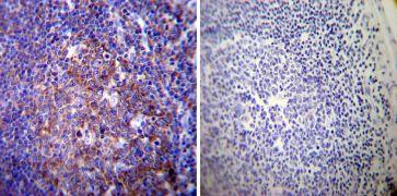 Sodium / Potassium ATPase alpha-3 Antibody (MA3-915)