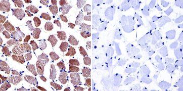CACNA2D1 Antibody (MA3-921)