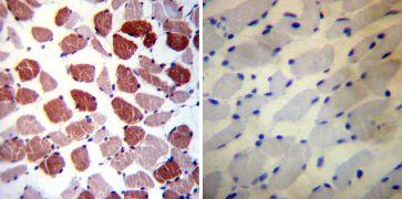 Phospholamban Antibody (MA3-922)