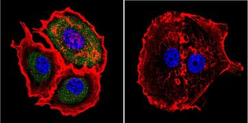 Mu-Calpain Antibody (MA3-942)