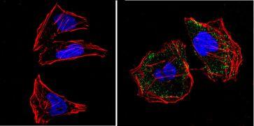 RASA1 Antibody (MA4-001)