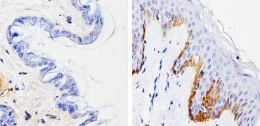 Cytokeratin 15 Antibody (MA5-11344)