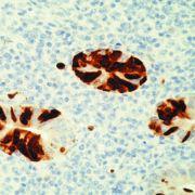 Adenovirus Type 2/5 Antibody (MA5-11349)
